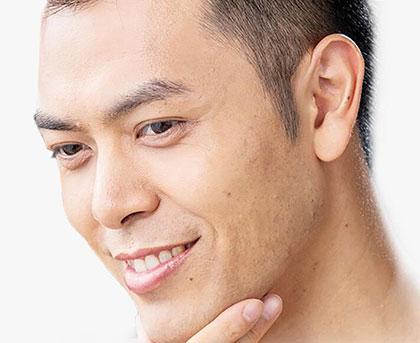 鬓角脱发怎么治疗