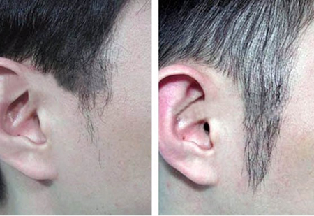鬓角脱发恢复方法