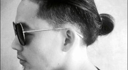 鬓角头发稀少