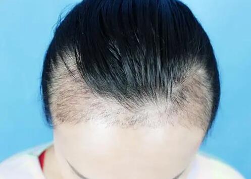发际线植发恢复两个阶段
