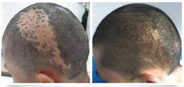 疤痕植发存活率
