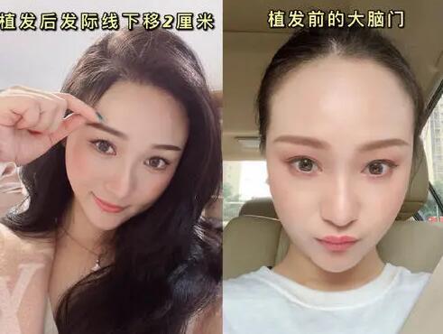 发际线植发对比