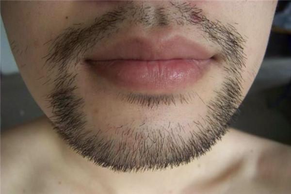 胡须可以移植到头发上吗