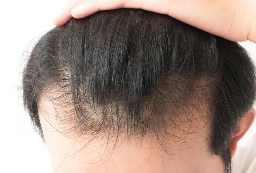 巨量毛发种植多久长出新头发