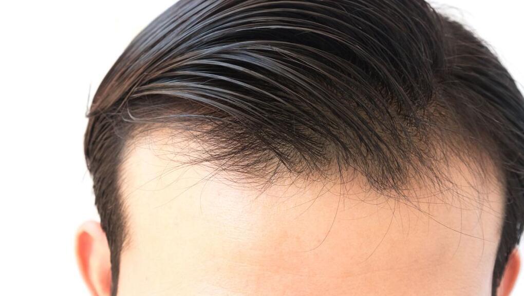 植发后可长久维持