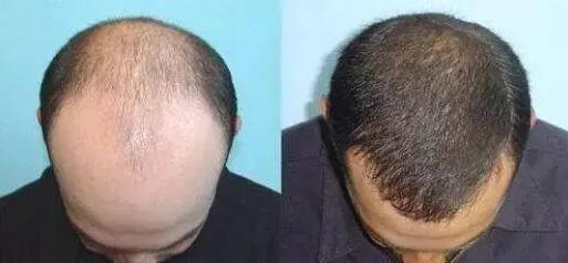 巨量毛发移植效果