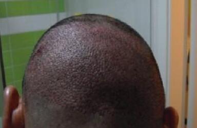 疤痕植发怎样检测血运