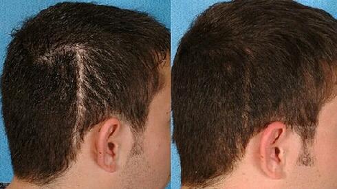 疤痕植发效果