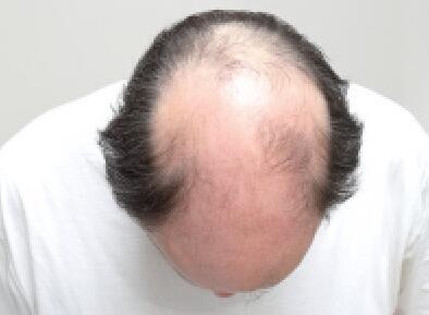 大面积脱发