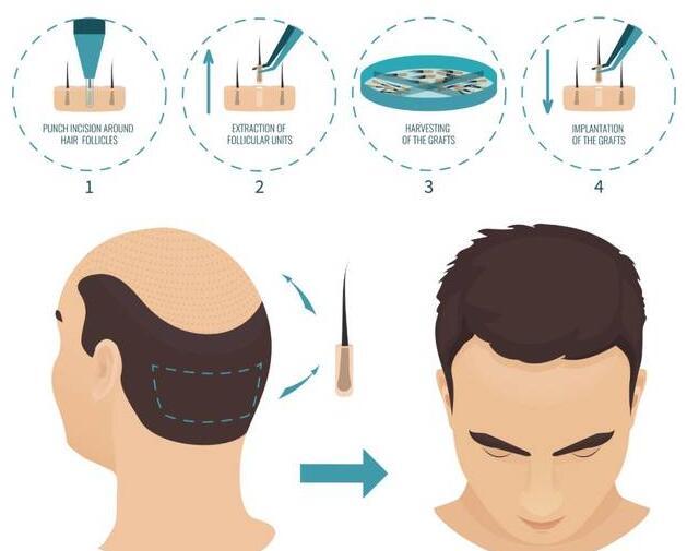毛发移植流程