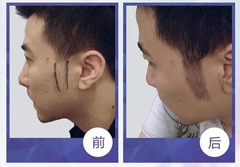 鬓角植发效果