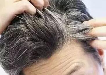 两鬓白发怎样调理