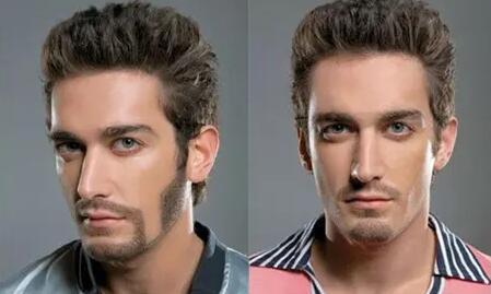 胡须可以种植到头发上吗
