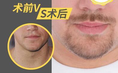 胡须种植中间脱落期