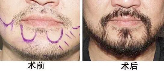 胡须种植效果