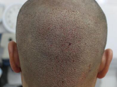 头上疤痕祛除方法有几种
