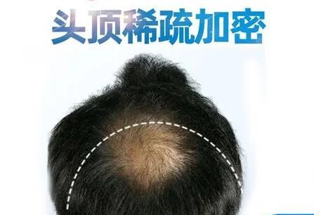 植发加密和植发的区别