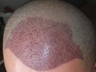 疤痕植发有用吗