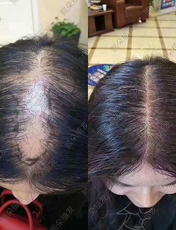 头顶加密好不好?1年后的植发效果反馈