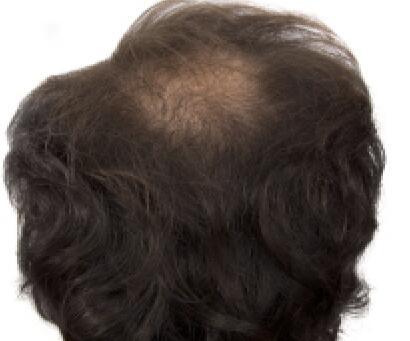 疤痕种头发有效吗