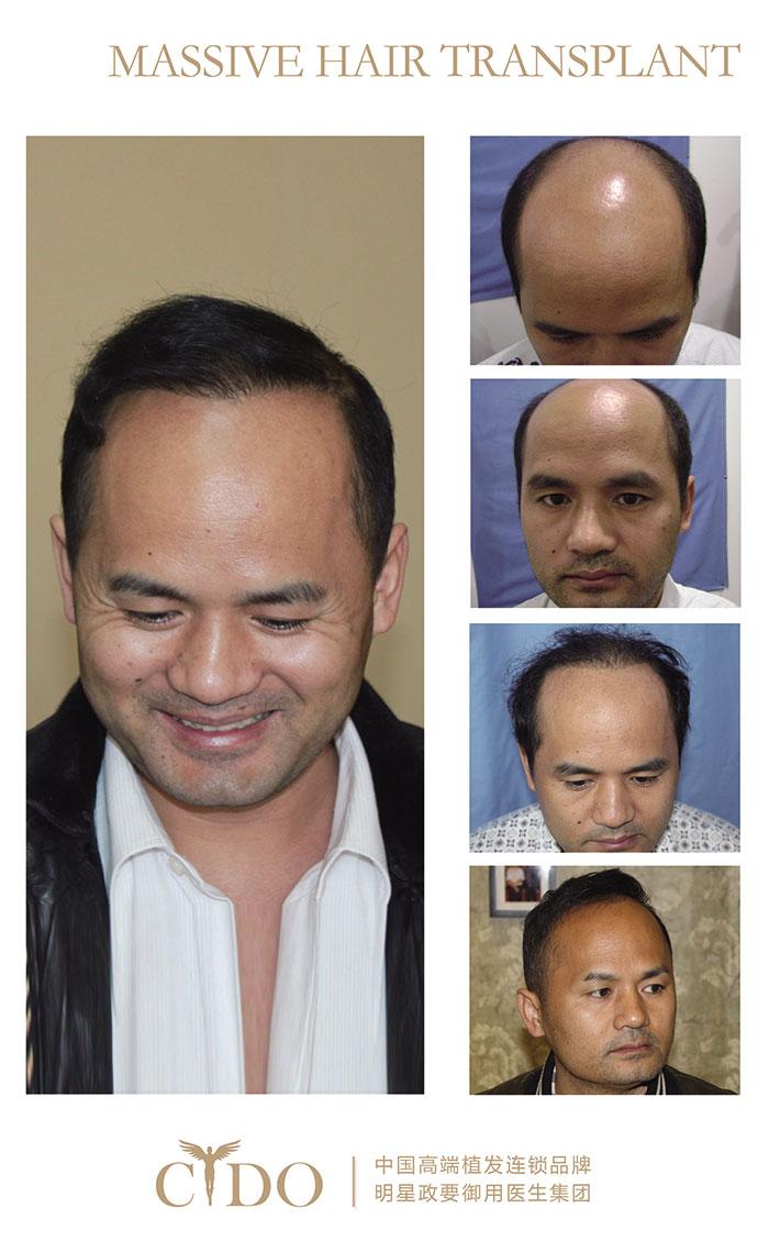 秃顶植发全过程