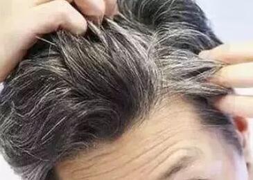 两侧鬓角白发