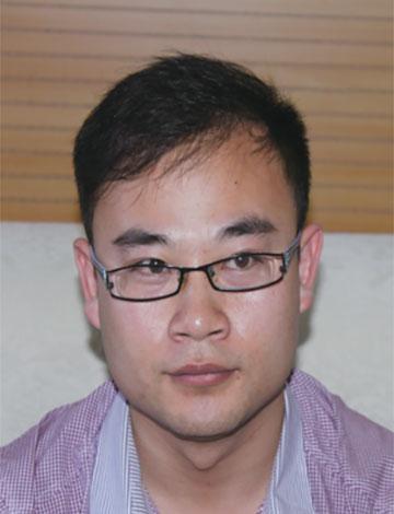 25岁程序员英年早秃,植发后恢复浓密