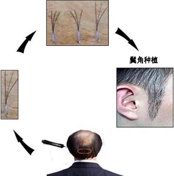 鬓角种植流程