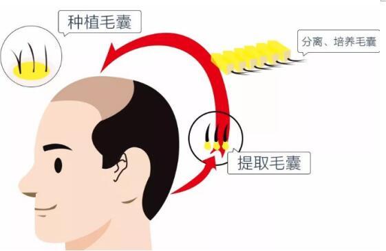 毛发种植技术