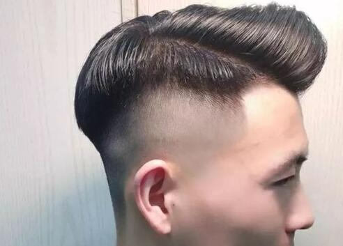男生鬓角头发少