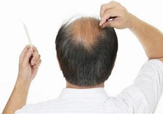 巨量毛发种植术大概多少钱