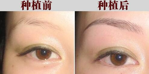 眉毛变浓的方法