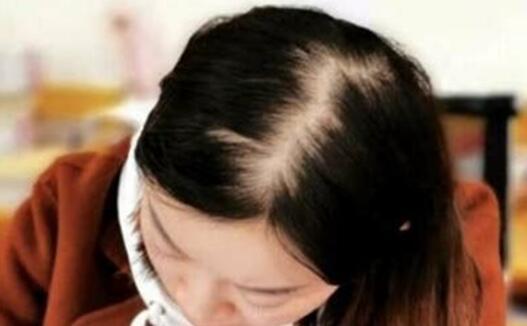 加密的头发会生长吗