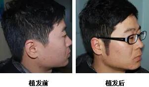 鬓角植发效果前后对比