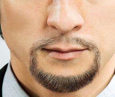 胡须种植靠不靠谱