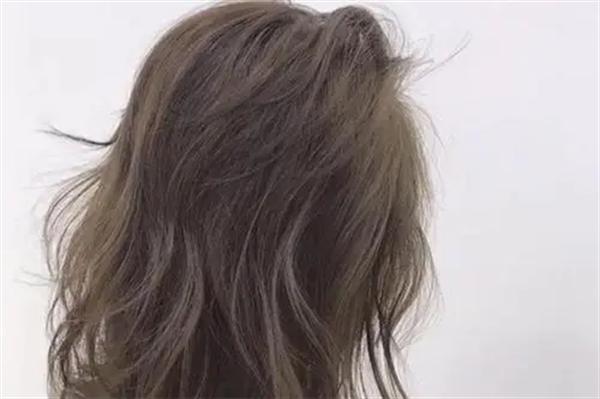 不剃发植发的毛囊怎么来的