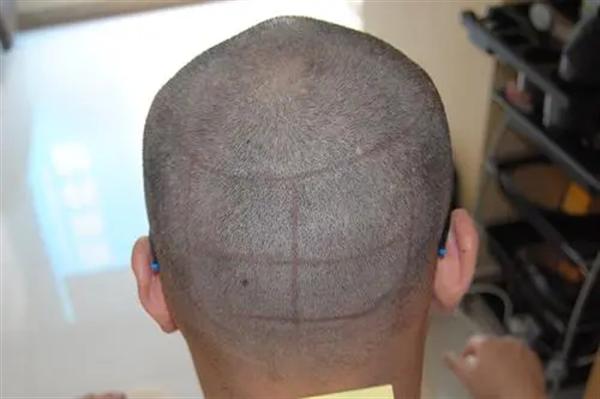 巨量毛发移植