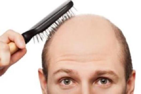 鬓角头发稀疏