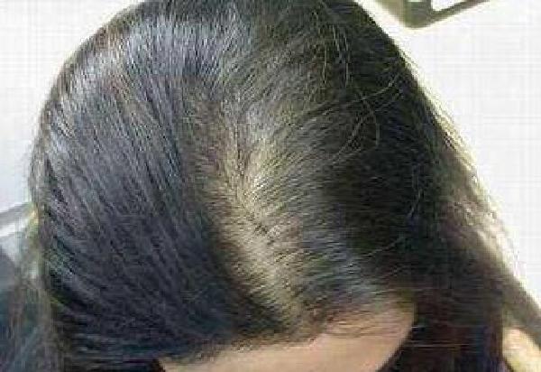 不剃发植发原理