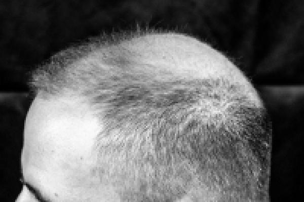 头顶头发加密