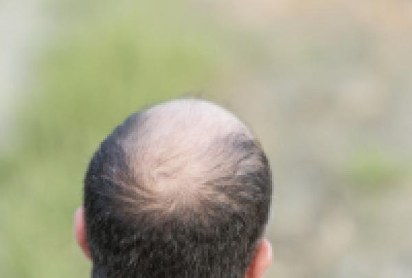 头顶头发稀少加密手术