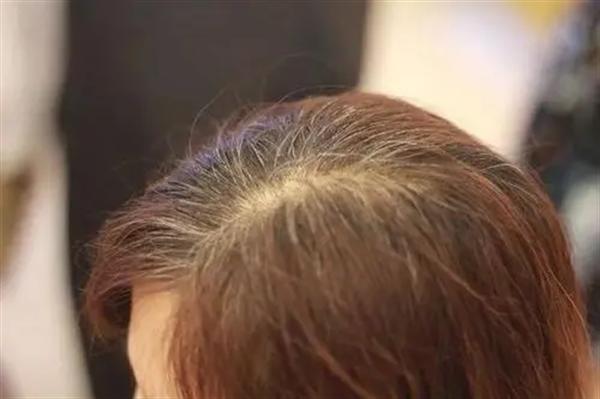 巨量毛发移植哪种好