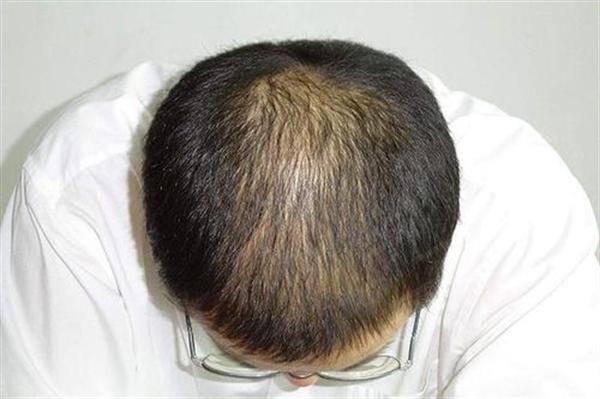 不剃发植发