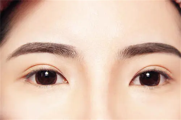 眉毛种植技术