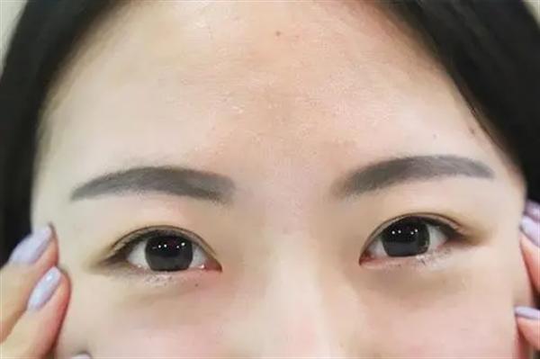 韩式眉毛种植后护理