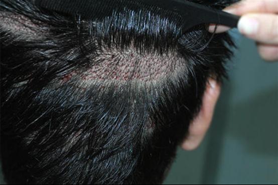 疤痕植发恢复过程怎么样