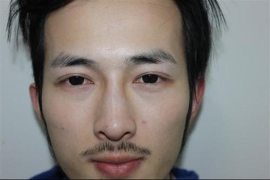 男生种眉毛多少钱