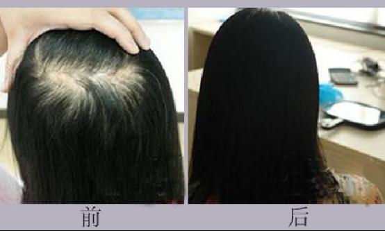 不剃发植发是什么原理
