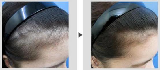 巨量毛发移植一般需要多少毛囊