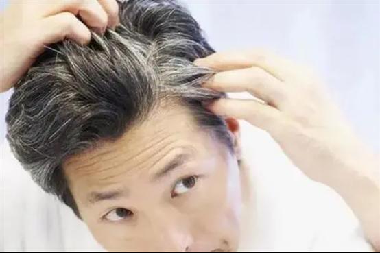 脱发鬓角生发技术